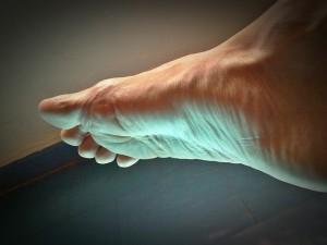 Besser leben mit Gicht - Gichtanfall